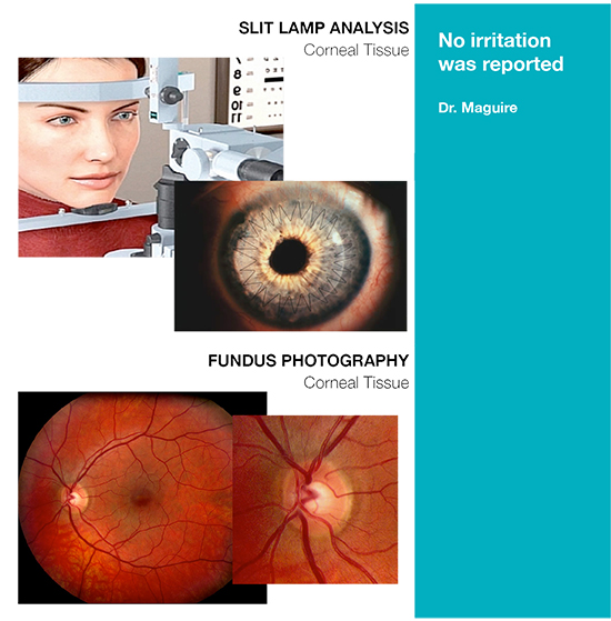 Slit Lamp Analysis